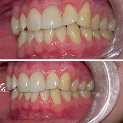 gum-surgery